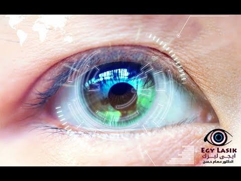 1090ec16d شروط عملية الليزك - YouTube