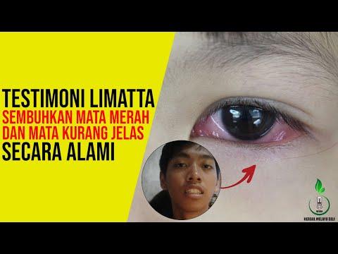 cara-menyembuhkan-mata-merah-dan-penglihatan-kurang-jelas---testimoni-sehat-mata-limatta-softgel