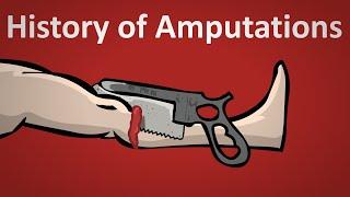 History Of Amputation