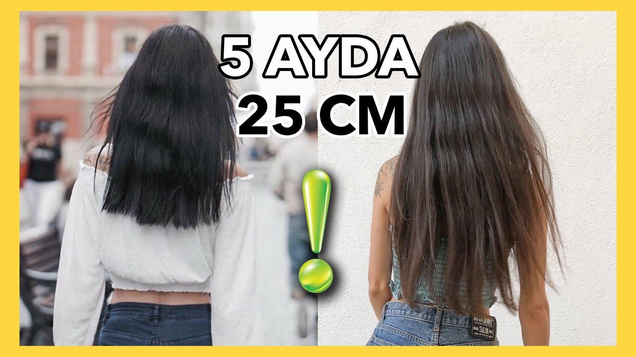 Hizli Sac Uzatma Yontemim 2020 5 Ayda 25 Cm Sac Uzatma Youtube