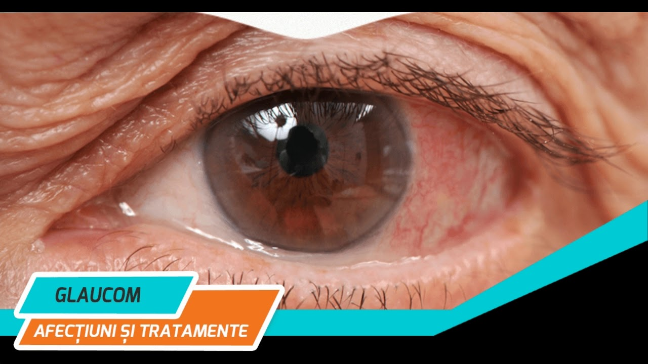 capacitatea de a restabili vederea în glaucom)