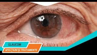 Tratament Glaucom - Ce este si cum se trateaza glaugomul?,la Copilul destept