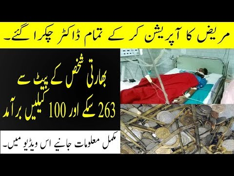 Exported 263 coins and 100 nails from the Indian person's stomach in Urdu by First of All