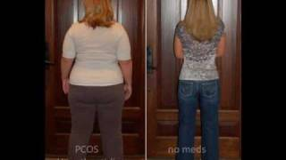 HCG Protocol Before and After - Goal