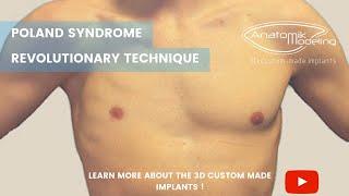 видео Что такое синдром Поланда?