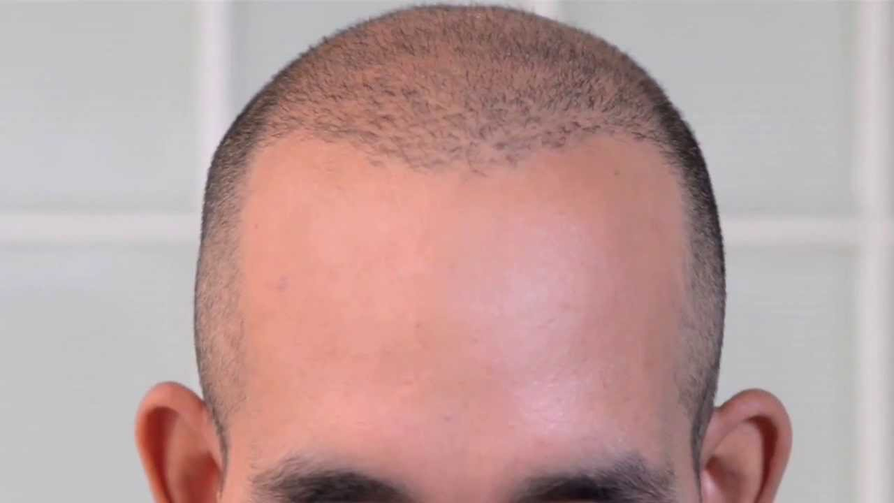 Scalp Micropigmentation For Michael S Hair Transplant Scar Repair At