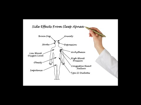 Anti Snoring May Boost Alzheimer's Risk