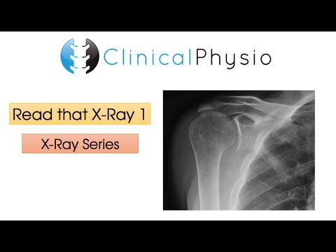 Read That X-Ray 1 | Clinical Physio