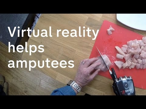 Virtual reality: how technology can help amputees