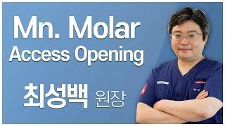 [#Dentalbean] Mn. Molar Access Opening