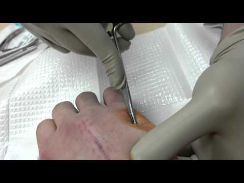 Fifth metacarpal pin removal