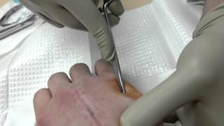 Fifth metacarpal pin removal
