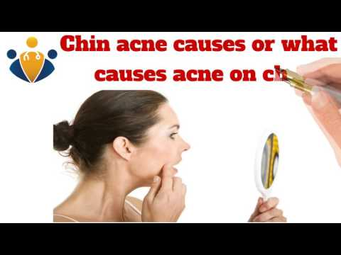 hqdefault - Are Chin Pimples Hormonal