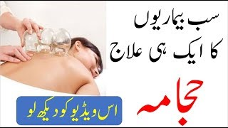 Video Cupping treatment in islam in urdu|cupping hijama benefits حجامہ کے فوائد download MP3, 3GP, MP4, WEBM, AVI, FLV Oktober 2018
