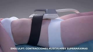 EMSCULPT Desarrolla músculo y quema grasa. DE SAJA MEDICINA ESTETICA Novedad 2020