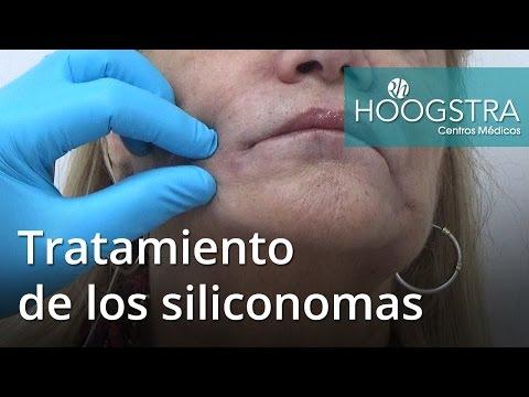 Tratamiento de los siliconomas (16157)