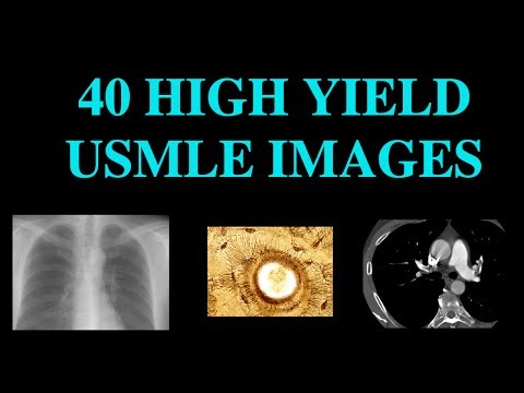 40 High Yield Images for USMLE (CT, XRay, Histology)