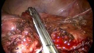 видео Дивертикул мочевого пузыря