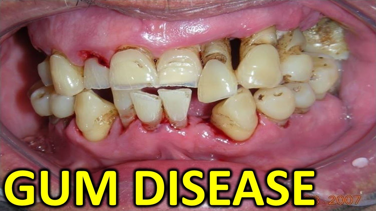gum disease In fact, there are numerous natural home remedies for gum disease you can utilize right here treating gum disease is not especially difficult in fact, there are numerous natural home remedies for gum disease you can utilize right here skip to main content store.