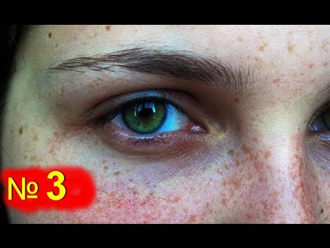 Причины появления темных кругов и синяков под глазами