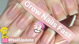 Grow Nails Fast NO More Dry Weak Nails! Nail Growth Serum? GROW NAILS WITH ME Update!