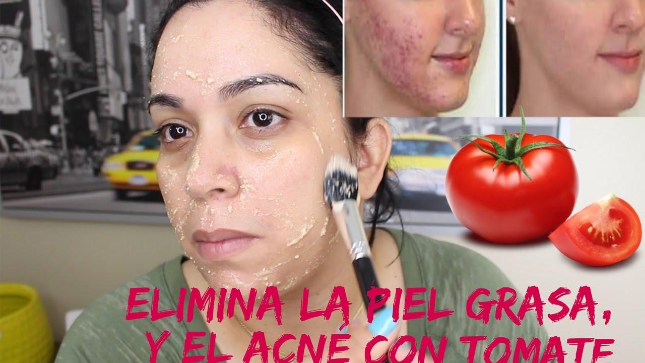 tratamientos caseros para eliminar la grasa de la cara