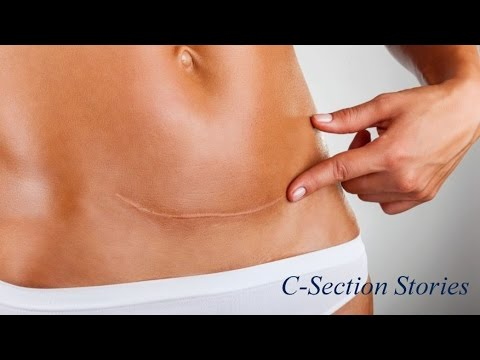 Foods You Can Eat After C-Section- SheCare - YouTube