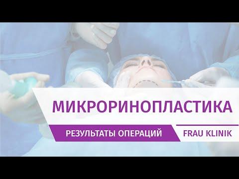 Видео 10 СУТКИ