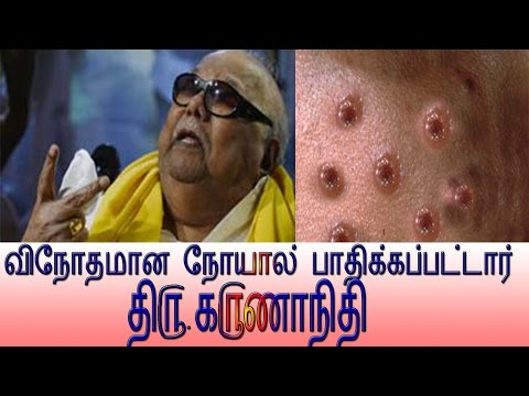 CM Jayalalitha and NOW Karunanidhi Also in Treatment