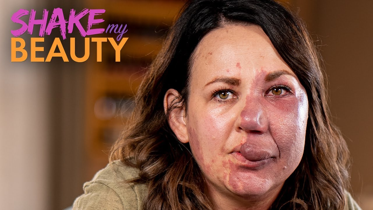 After Years Of Hiding - I'm Ready To Embrace My Birthmark | SHAKE MY BEAUTY