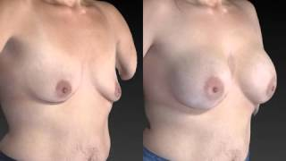 Breast Enhancement 3D Before and After-58