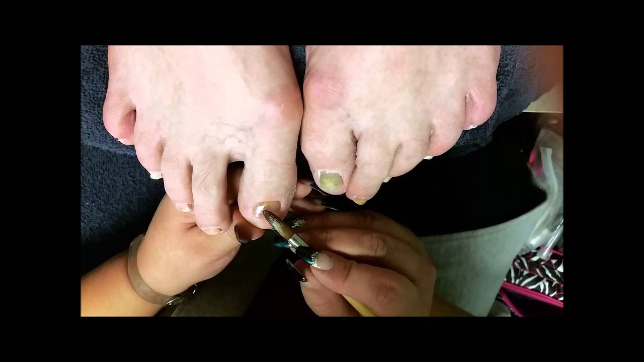 Toe Nail reconstruction for missing nails. - YouTube