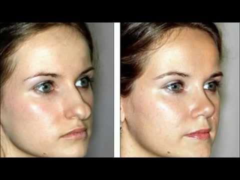 Top Beverly Hills Plastic Surgeon - Best Rhinoplasty Los ...