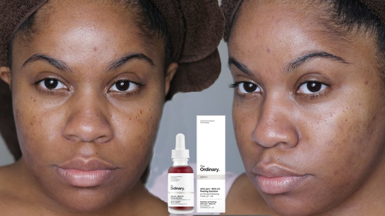 Diy Chemial Peel The Ordinary Aha 30 Bha 2 Peeling Solution Review Youtube