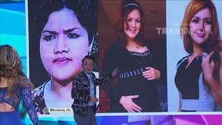 BROWNIS TONIGHT - Drastis !! Transformasi Barbie Kumalasari Dari Gemuk Jadi Singset (11/4/18) Part 2