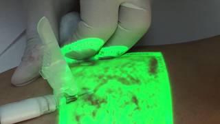 Melbourne fl remoção veias das de pernas
