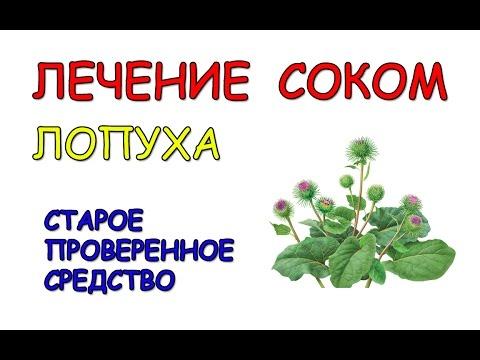 Лопух -