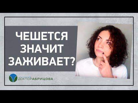 ЧЕШЕТСЯ ЗНАЧИТ ЗАЖИВАЕТ? | проходе | причины | заднем | женщин | глисты | при | зуд | бер | у | в