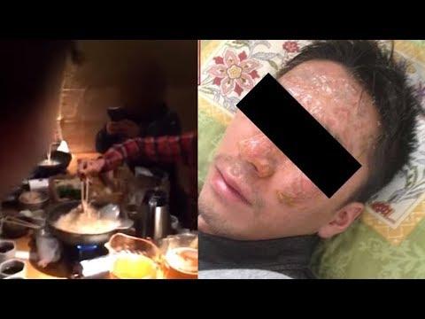 Direktur Benamkan Kepala Karyawannya ke Panci Mendidih saat Makan Bersama, Videonya Viral Mp3