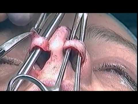 The delivery approach - www.rhinoplasty.nl
