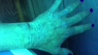 Granuloma Annulare in tannin bed