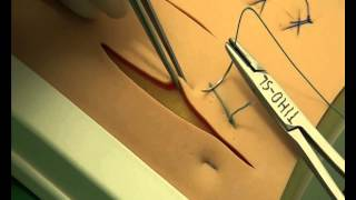 CSL: Horizontal mattress sutures