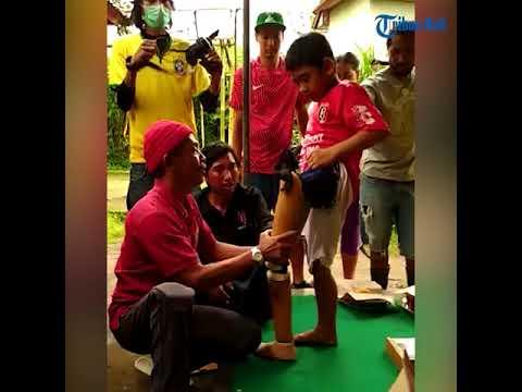 Proses Pemasangan Kaki Yoko   Fans Pemain Bali United Stefano Lilipaly