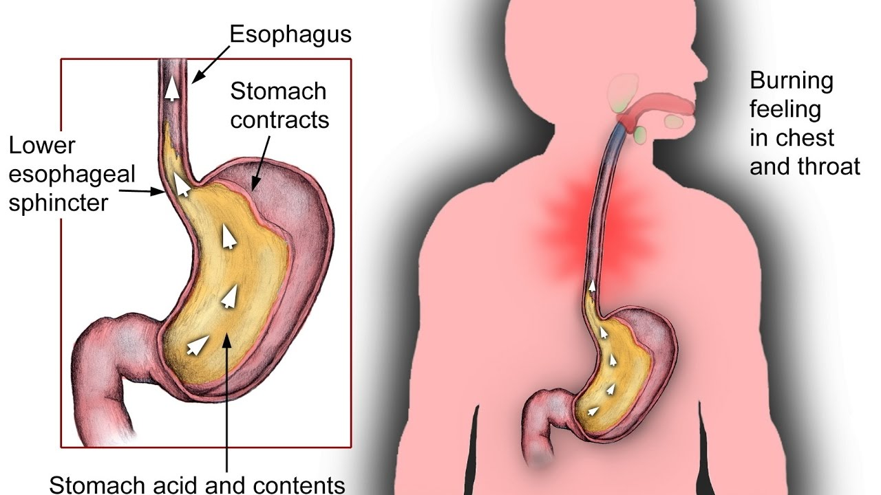 how to stop belching and bloating using different home strategies no more  acid reflux belching