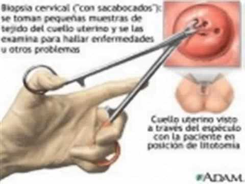 Qué Es Una Biopsia De Cuello Uterino Youtube