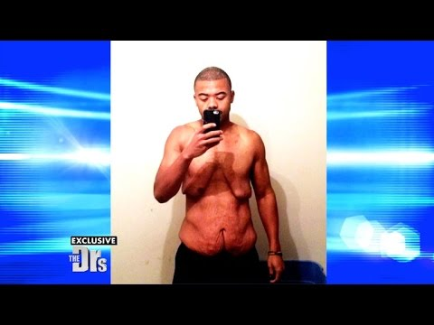 Update on Man Who Lost More than 200 Pounds