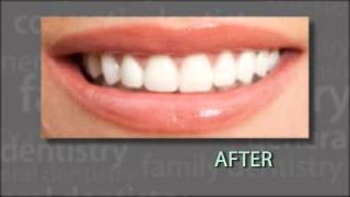 "Tupelo, MS -- Dr. Richard Caron ""Your Dental Health"" Segment - Veneers Thumbnail"