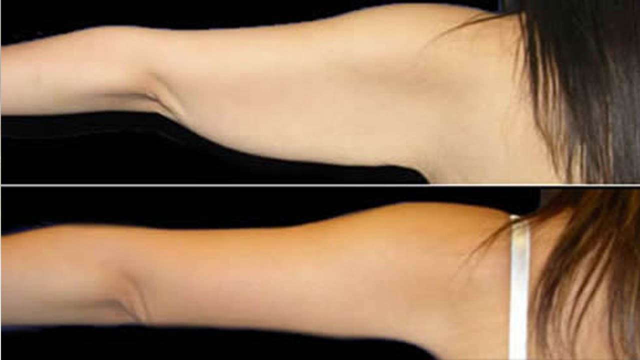 Ejercicios para eliminar grasa debajo de los brazos