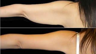 Elimina los gorditos de los brazos en 20 días / Elimina los gorditos