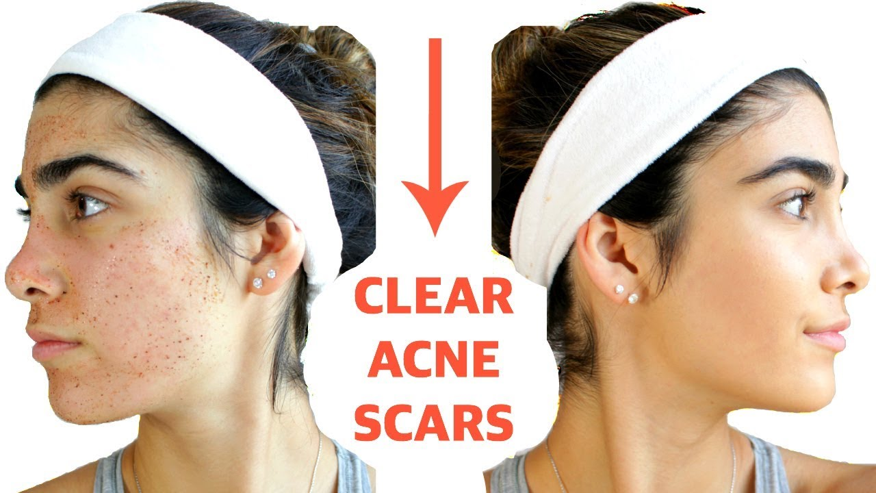 f4a45281d023c CLEAR ACNE SCARS FAST | DIY Face Masks That WORK
